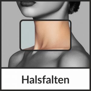 Faltenbehandlung der Halsfalten mit Hyaluronsäure