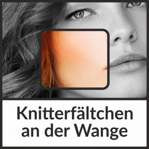 Faltenbehandlung bei Knitterfältchen an der Wange mit Hyaluronsäure