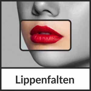 Faltenbehandlung bei Lippenfalten mit Hyaluronsäure