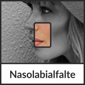 Faltenbehandlung der Nasolabialfalte mit Hyaluronsäure