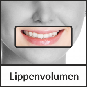 Lippenvolumen – Volumenaufbau der Lippen mit Hyaluronsäure